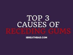 Top 3 causes of receding gums