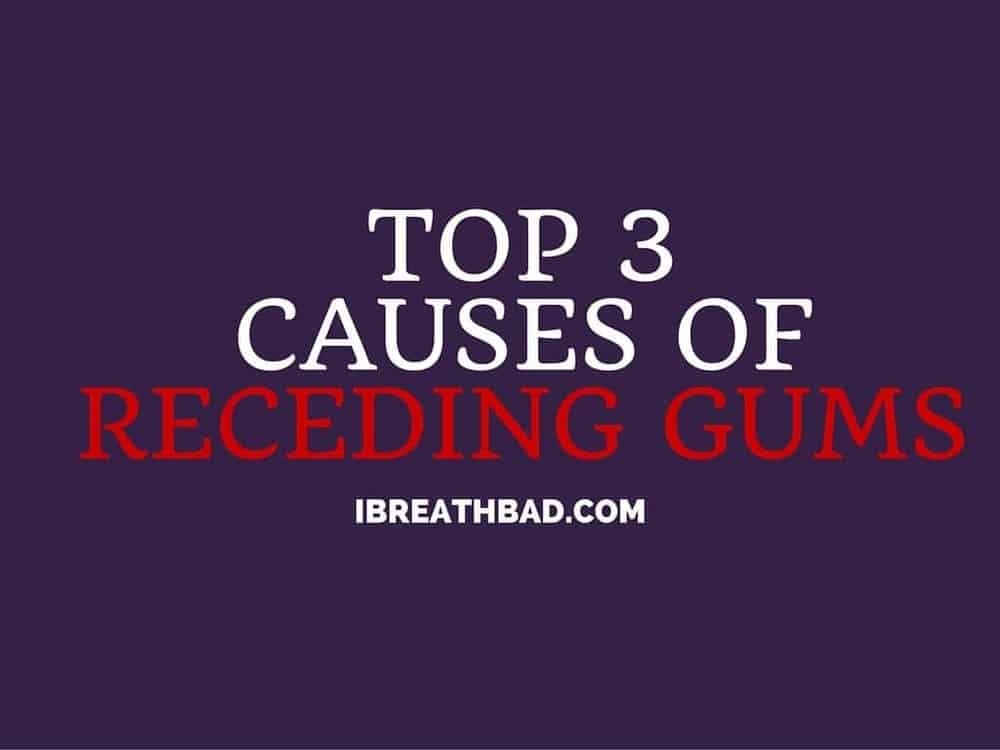 Top 3 causes of receding gums