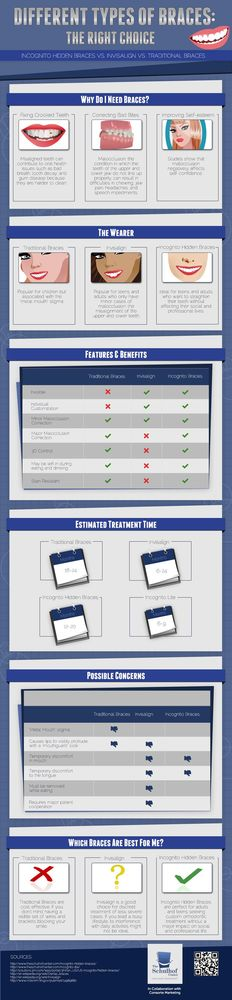 incognito braces vs insialign braces vs traditional braces infographics