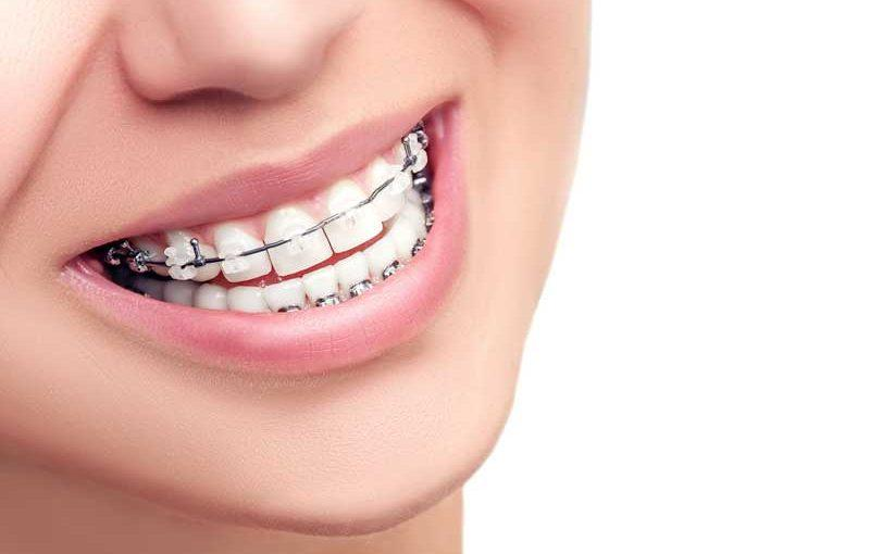best water flosser for braces