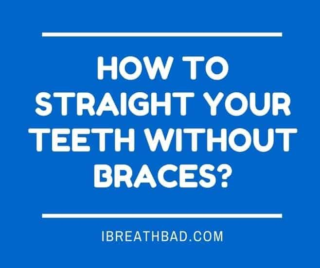 straighting teeth without braces