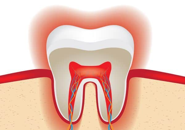 sensitive teeth after whitening