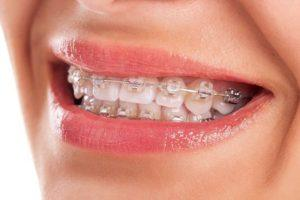 Whitening strips after braces