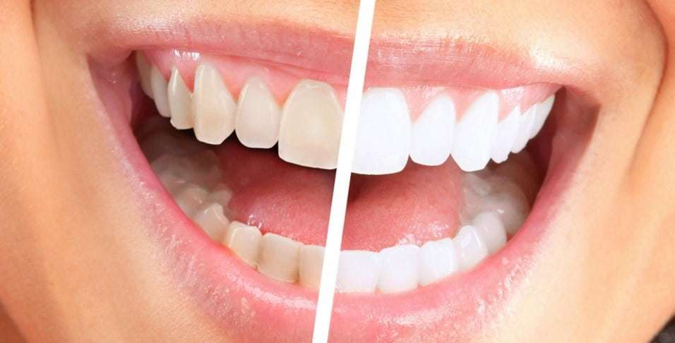 why use whitening strips