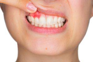 Best Toothpaste for Gingivitis and Other Gum Diseases: Reviewed