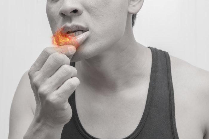 mouth ulcers treatment