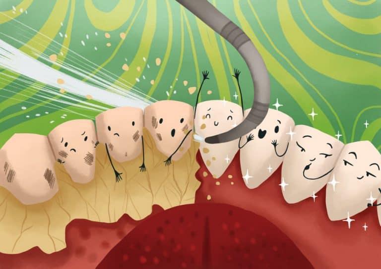 remove-plaque-tartar-from-teeth